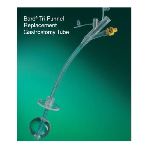 Cheap Windshield Replacement Quotes: BettyMills: Triple Replacement Gastrostomy Tube Bard 24 Fr
