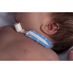 MON24023900 - Dale MedicalTracheostomy Tube Holder PediPrints™