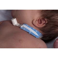 MON24103900 - Dale MedicalTracheostomy Tube Holder Dale® PediStars™, 10EA/BX