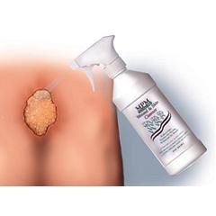 MON31101890 - MPM Medical - Wound & Skin Cleanser 8 oz. Spray Bottle, 9EA/CS