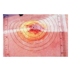 MON70832100 - AlimedDisposable Wound Measuring Guides