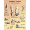 Needles Syringes Acupuncture Needles: Fabrication Enterprises - Anatomical Chart - Deformities of the Feet Laminated