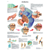 Fabrication Enterprises Anatomical Chart - Arthritis, Laminated FNT 12-4605L