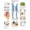 Fabrication Enterprises Anatomical Chart - Osteoporosis, Laminated FNT 12-4615L