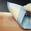 Molnlycke Healthcare Wound Dressing Mepitel Silicone 3 x 2 Sterile MON 29152101