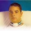 Smiths Medical 22 Tracheotomy Strap, Adult, 100EA/CS MON 69603910