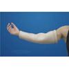 Alimed DermaSaver™ Protective Arm Tube (52387/NA/NA/XS) MON 741754EA